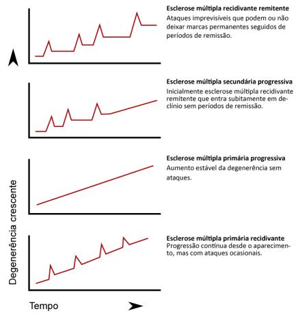 Tipos-de-progressão-da-esclerose-múltipla.png
